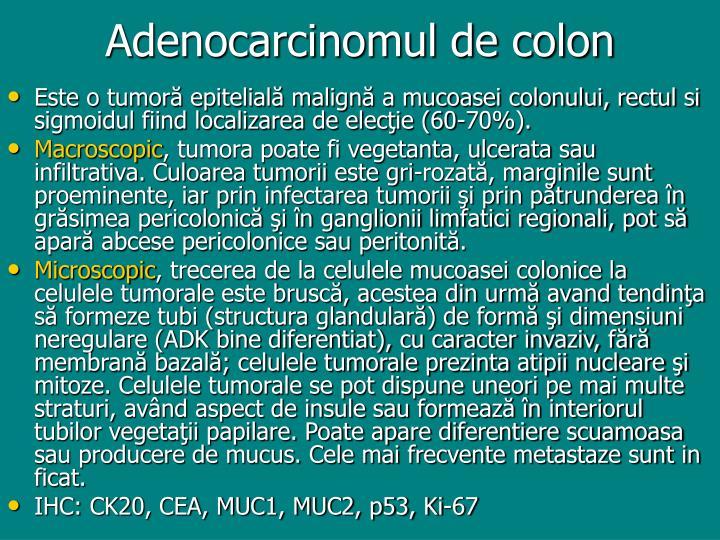 Adenocarcinomul de colon