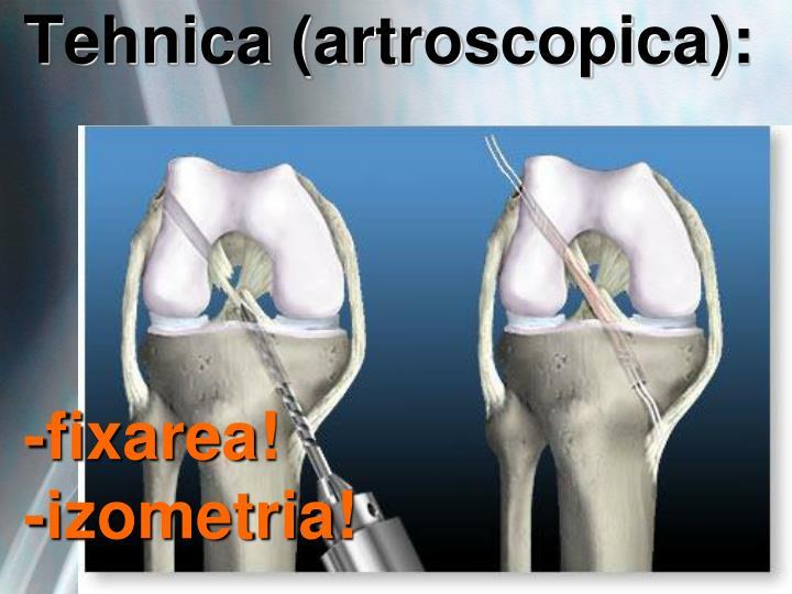 Tehnica (artroscopica):