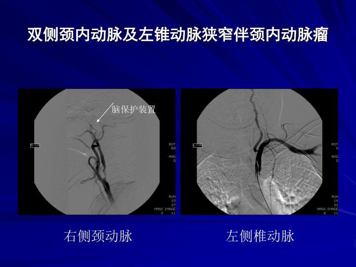 双侧颈内动脉及左锥动脉狭窄伴颈内动脉瘤