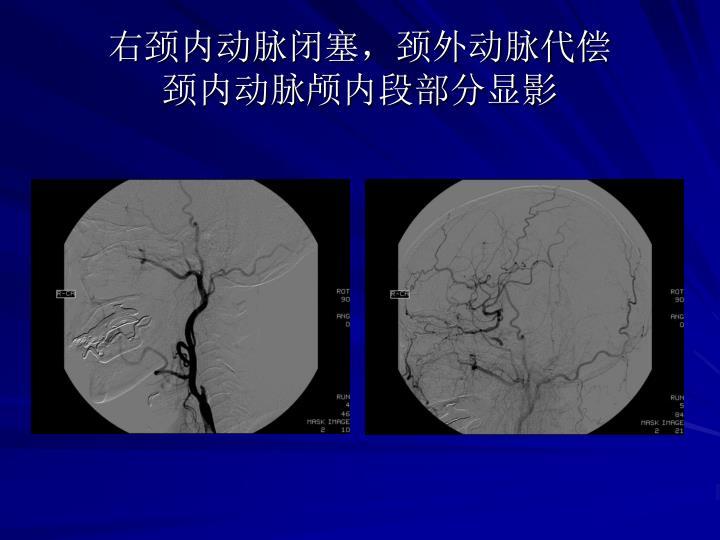 右颈内动脉闭塞,颈外动脉代偿