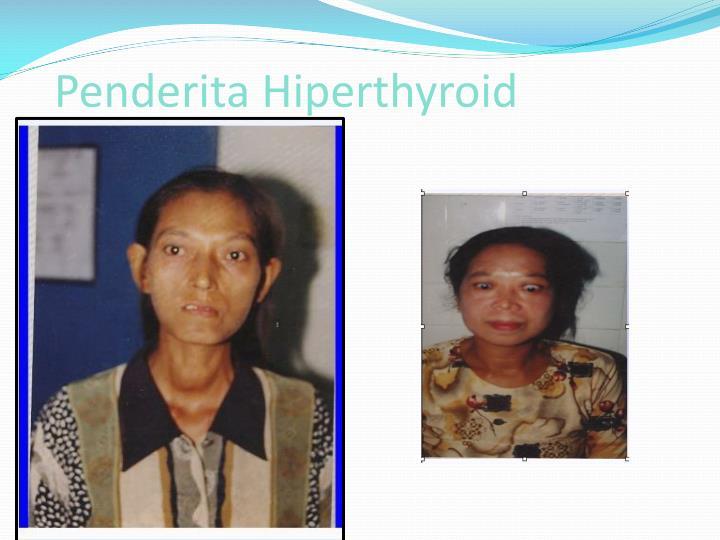 Penderita Hiperthyroid