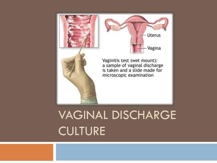 vaginal discharge culture n.