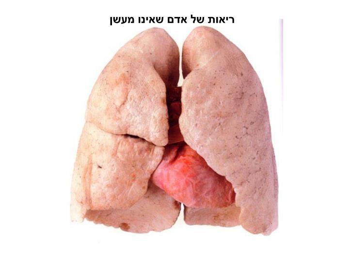 ריאות של אדם שאינו מעשן