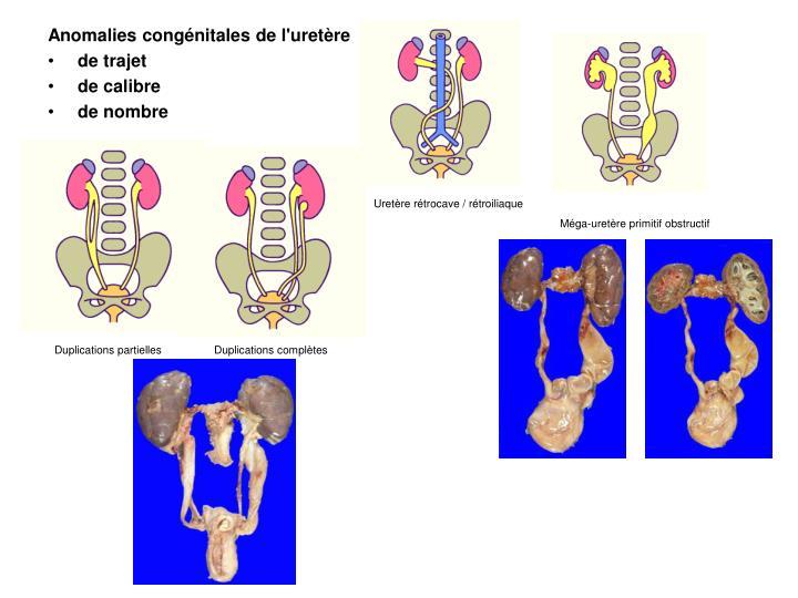 Anomalies congénitales de l'uretère
