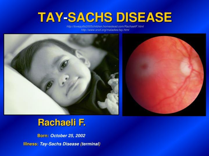 taysachs disease