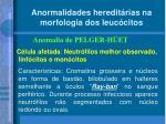 anormalidades heredit rias na morfologia dos leuc citos