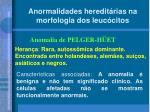 anormalidades heredit rias na morfologia dos leuc citos1