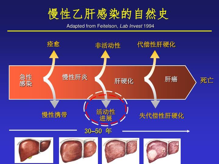 慢性乙肝感染的自然史