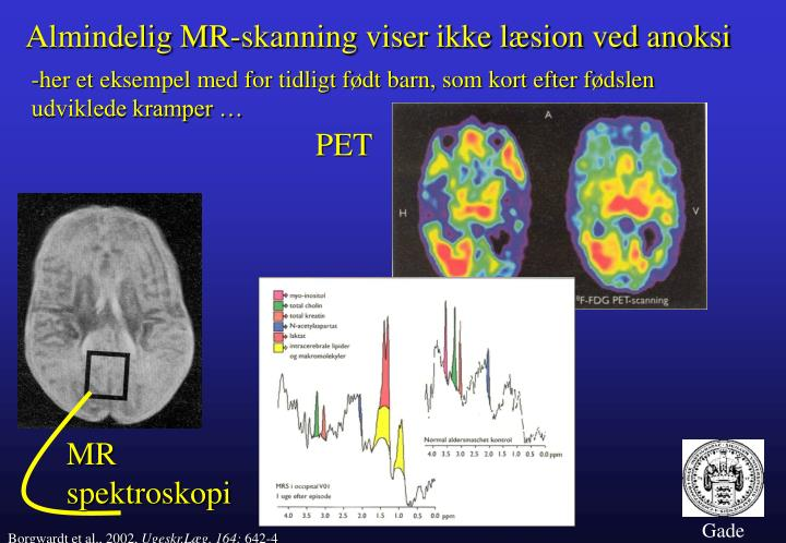 Almindelig MR-skanning viser ikke læsion ved anoksi