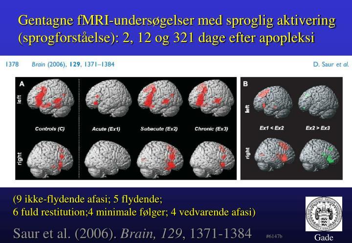 Gentagne fMRI-undersøgelser med sproglig aktivering