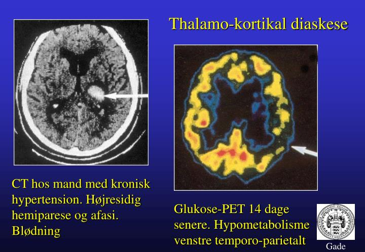 Thalamo-kortikal diaskese