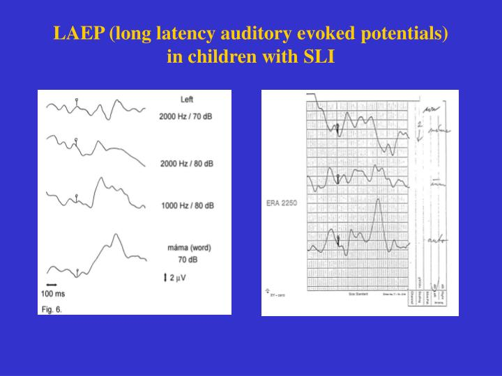 LAEP (long latency auditory evoked potentials)
