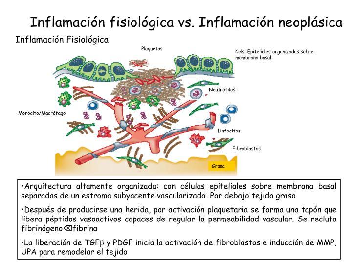 Inflamación fisiológica vs. Inflamación neoplásica