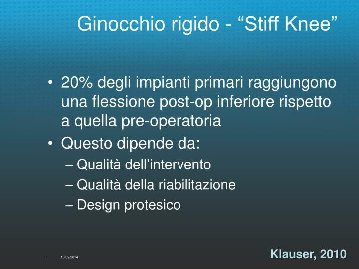 """Ginocchio rigido - """"Stiff Knee"""""""