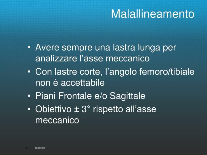 Malallineamento