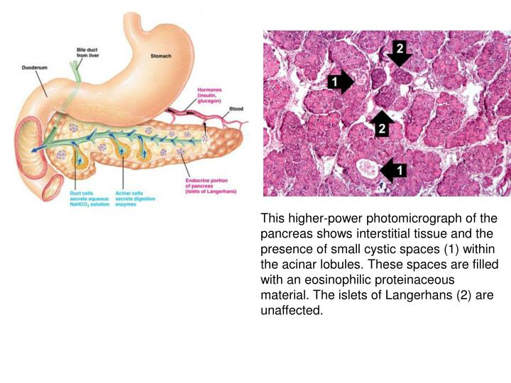 This higher-power photomicrograph of the pancreas shows interstitial tissue and the presence of small cystic spaces (1) within the acinar lobules. These spaces are filled with an eosinophilic proteinaceous material. The islets of Langerhans (2) are unaffected.