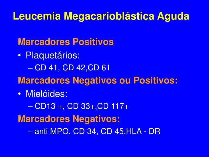 Leucemia Megacarioblástica Aguda