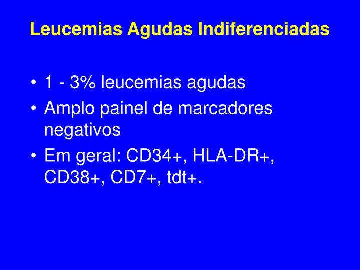 Leucemias Agudas Indiferenciadas