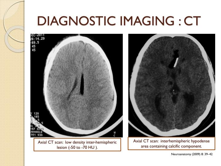 DIAGNOSTIC IMAGING : CT