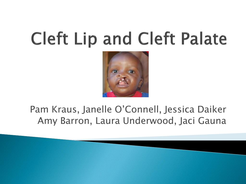 ppt - cleft lip and cleft palate powerpoint presentation - id:4213781