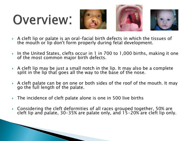an overview of the facial birth defects of cleft lip and palate Cleft lip and cleft palate happen is one of the most common birth defects  a  higher risk of having a baby with a facial birth defect like a cleft lip or cleft palate.