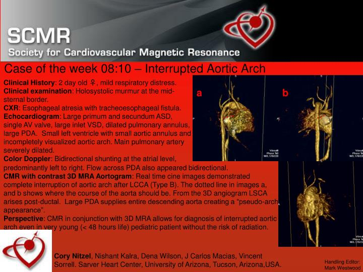 Case of the week 08 10 interrupted aortic arch