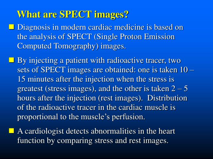 What are SPECT images?