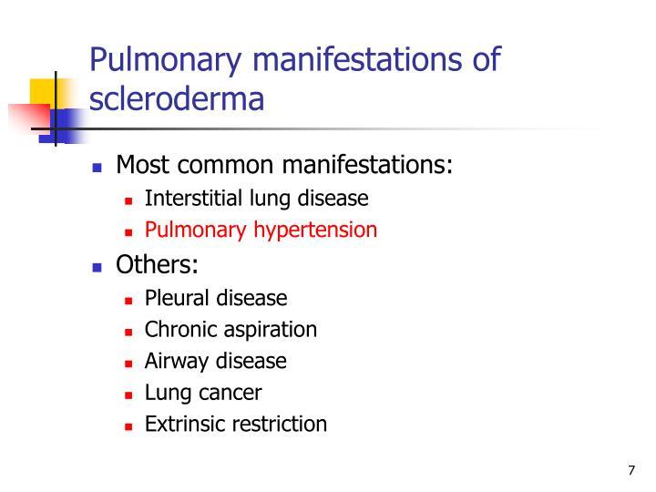 Pulmonary manifestations of scleroderma