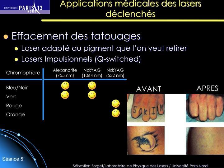 Applications médicales des lasers déclenchés