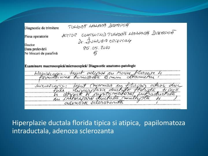 Hiperplazie ductala florida tipica si atipica,  papilomatoza intraductala, adenoza sclerozanta