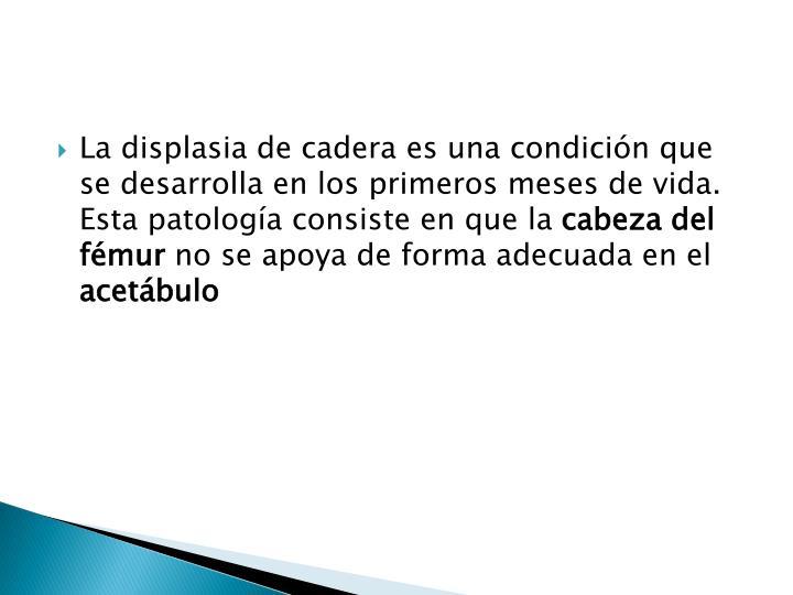 La displasia de cadera es una condición que se desarrolla en los primeros meses de vida.