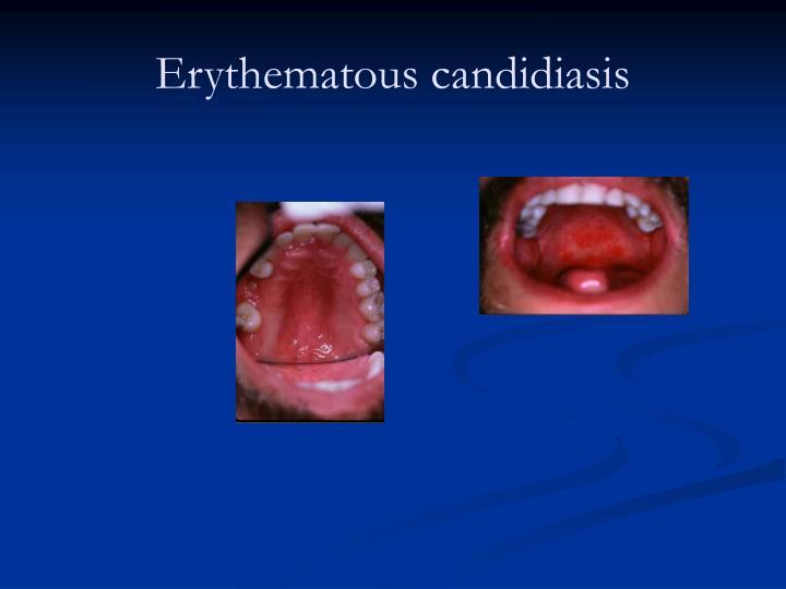 Erythematous candidiasis