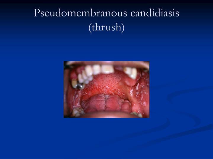 Pseudomembranous candidiasis