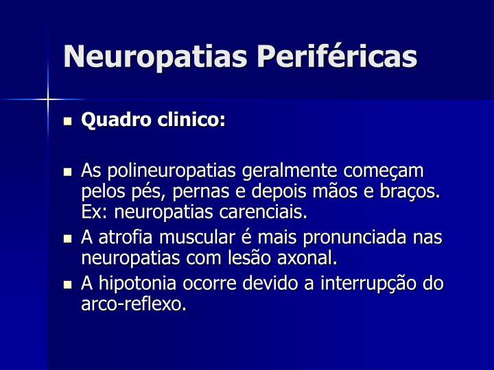 Neuropatias Periféricas