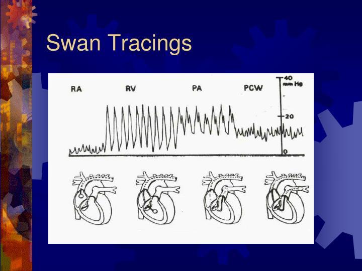 Swan Tracings