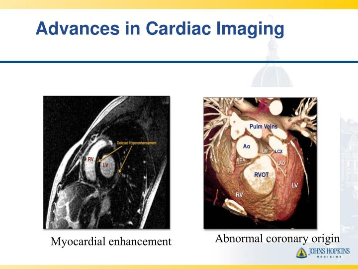 Advances in Cardiac Imaging