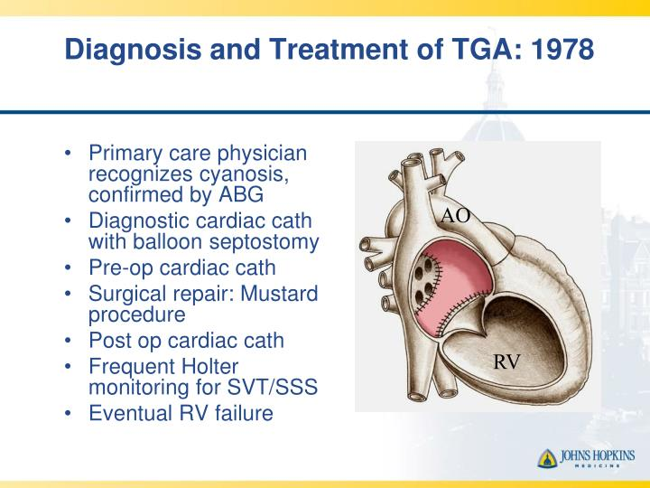 Diagnosis and Treatment of TGA: 1978