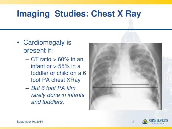 Imaging  Studies: Chest X Ray