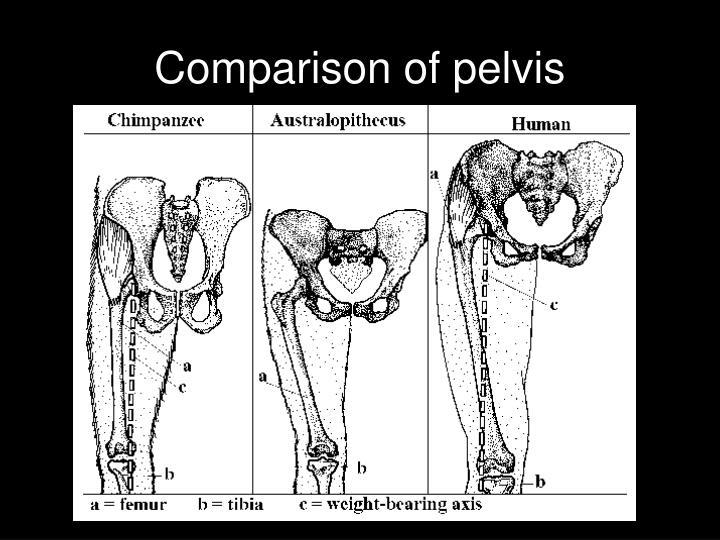 Comparison of pelvis