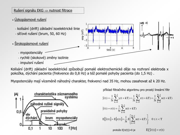 Rušení signálu EKG