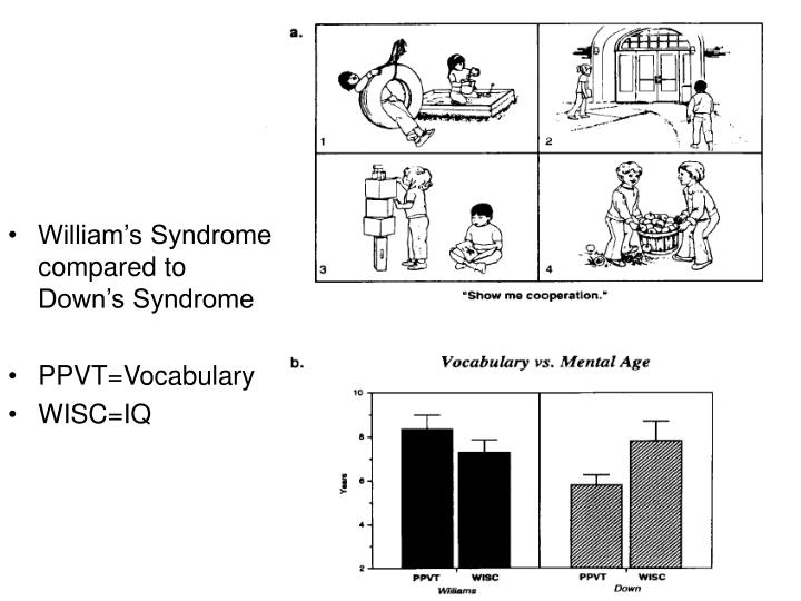 William's Syndrome compared to Down's Syndrome