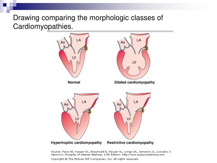 Drawing comparing the morphologic classes of Cardiomyopathies.