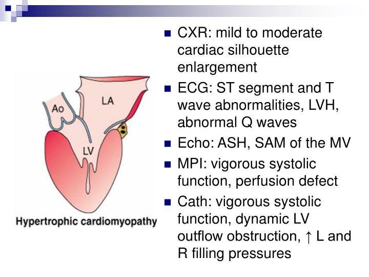CXR: mild to moderate cardiac silhouette enlargement