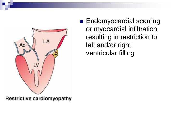 Endomyocardial scarring or myocardial infiltration resulting in restriction to left and/or right ventricular filling