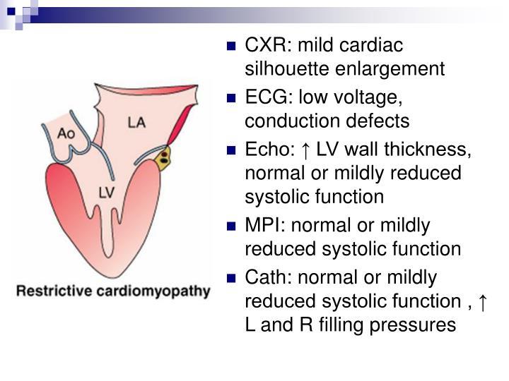 CXR: mild cardiac silhouette enlargement