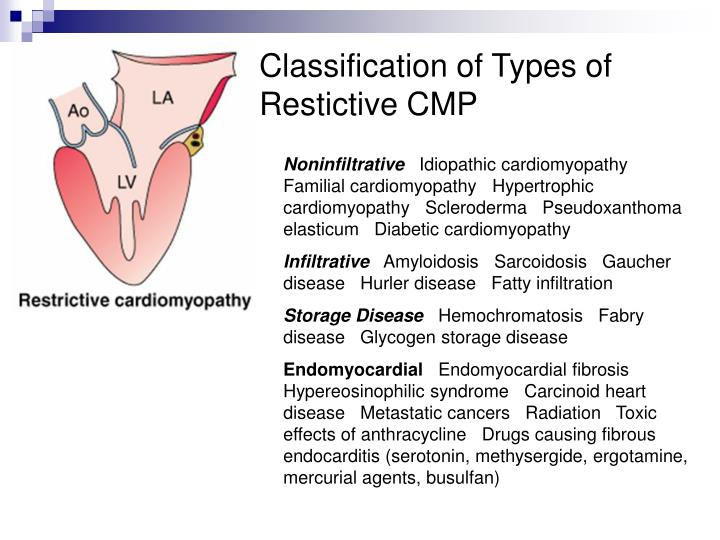 Classification of Types of Restictive CMP