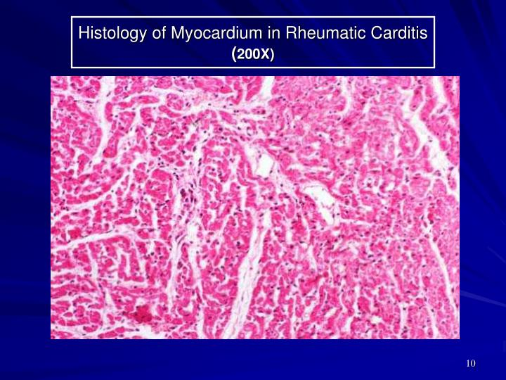 Histology of Myocardium in Rheumatic Carditis