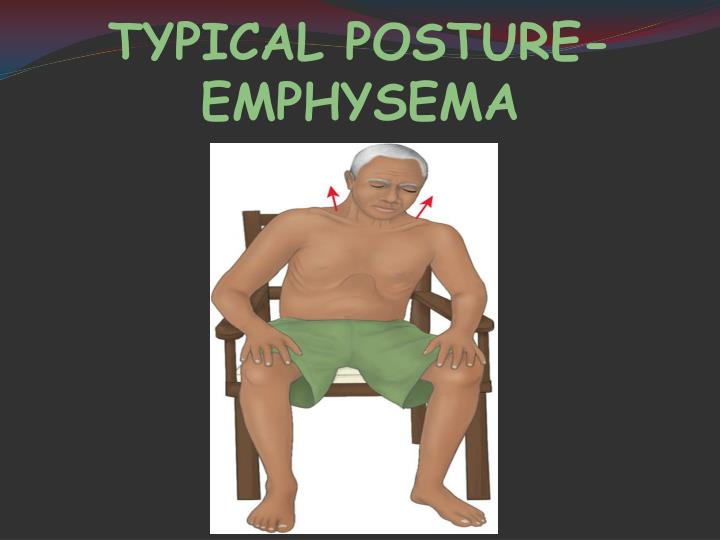TYPICAL POSTURE-EMPHYSEMA