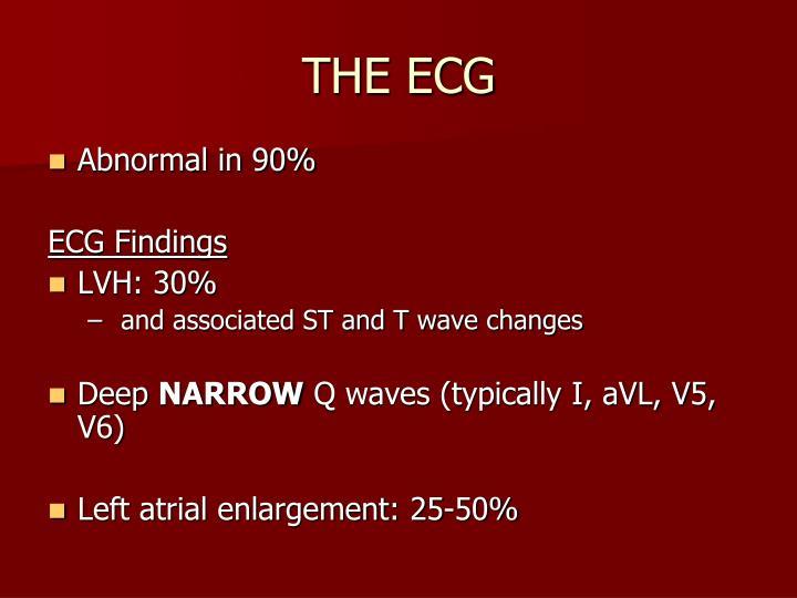 THE ECG