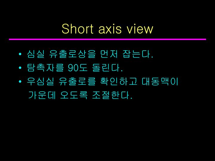 Short axis view